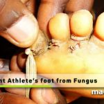 prevent Athlete's foot from Fungus