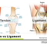 Tendon and Ligament