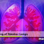 Cleaning-of-smoker-lungs